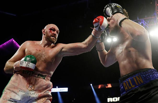 Tyson Fury found himself in deeper waters than expected when facing Otto Wallin. Photo Credit: Forbes.
