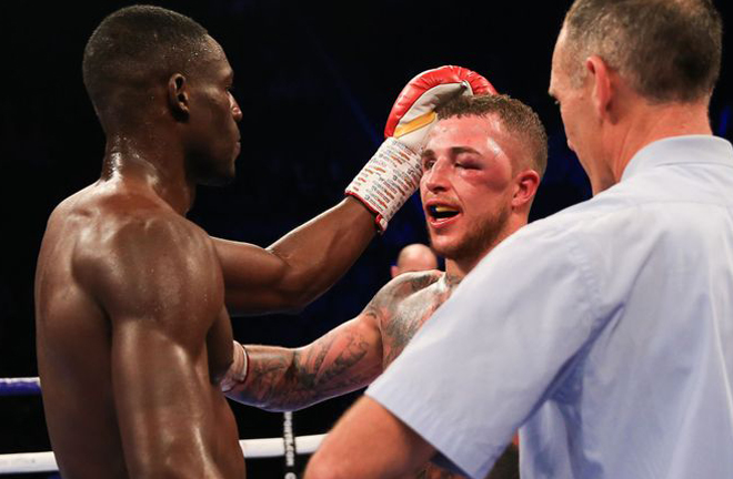 Hyde suffered a horrific eye injury against Richard Riakporhe Credit: Sky Sports