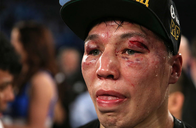 Provodnikov wearing his war wounds of his battle against John Molina. Photo Credit: Sky Sports