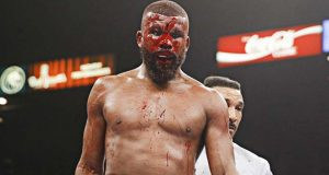 Badou Jack suffered a severe cut during his loss to Marcus Browne. Photo Credit: Esther Lin / Showtime