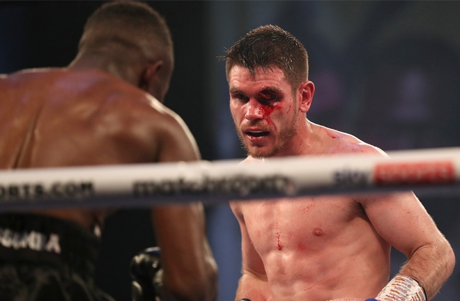 Thomas Patrick Ward suffered a gruesome cut in the seventh round Photo Credit: Mark Robinson/Matchroom Boxing